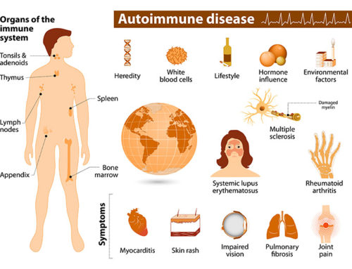 Beyond COVID-19: Autoimmune Disease and the Gut